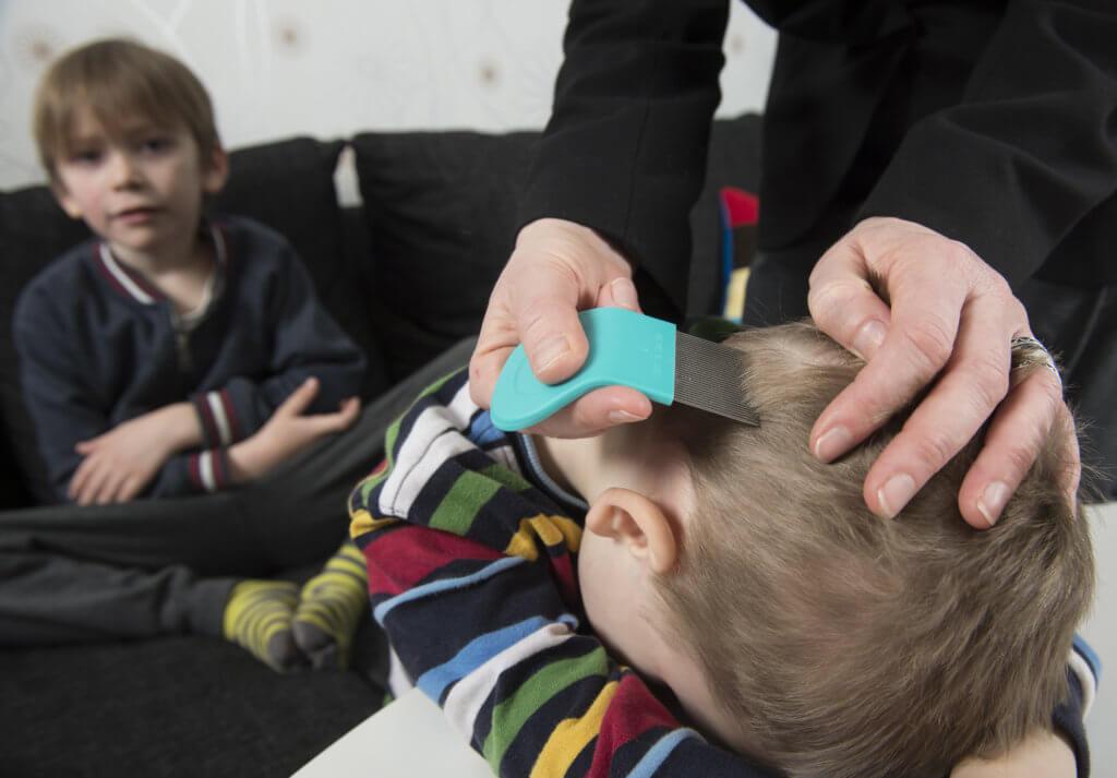 prevent remove lice get rid of lice moncton